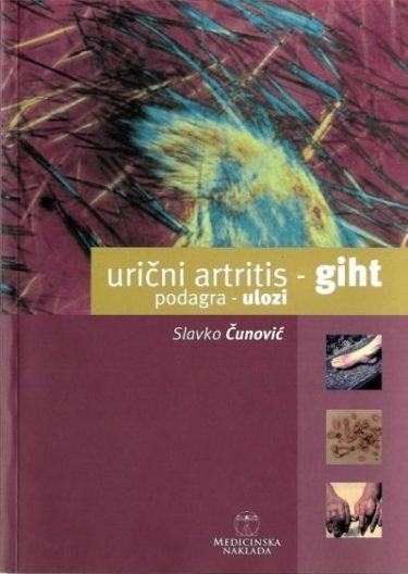 Urični artritis - giht : podagra - ulozi